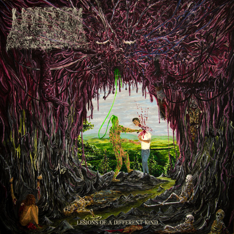 Undeath – Lesions of a Different Kind Review